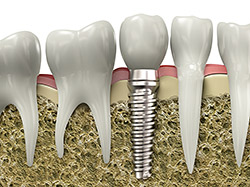 implant model concept