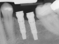 implant digital x-ray concept