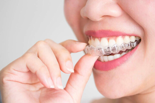 Do You Need Dental Braces or Retainers?