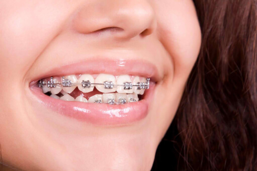Things to Know When You Have Dental Braces
