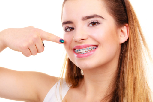 What You Should Keep in Mind if You Have Metal Braces